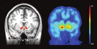 alcohol effects on the brain
