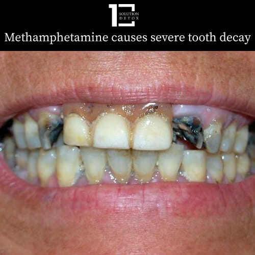 methamphetamine use causes tooth decay - a condition called meth mouth