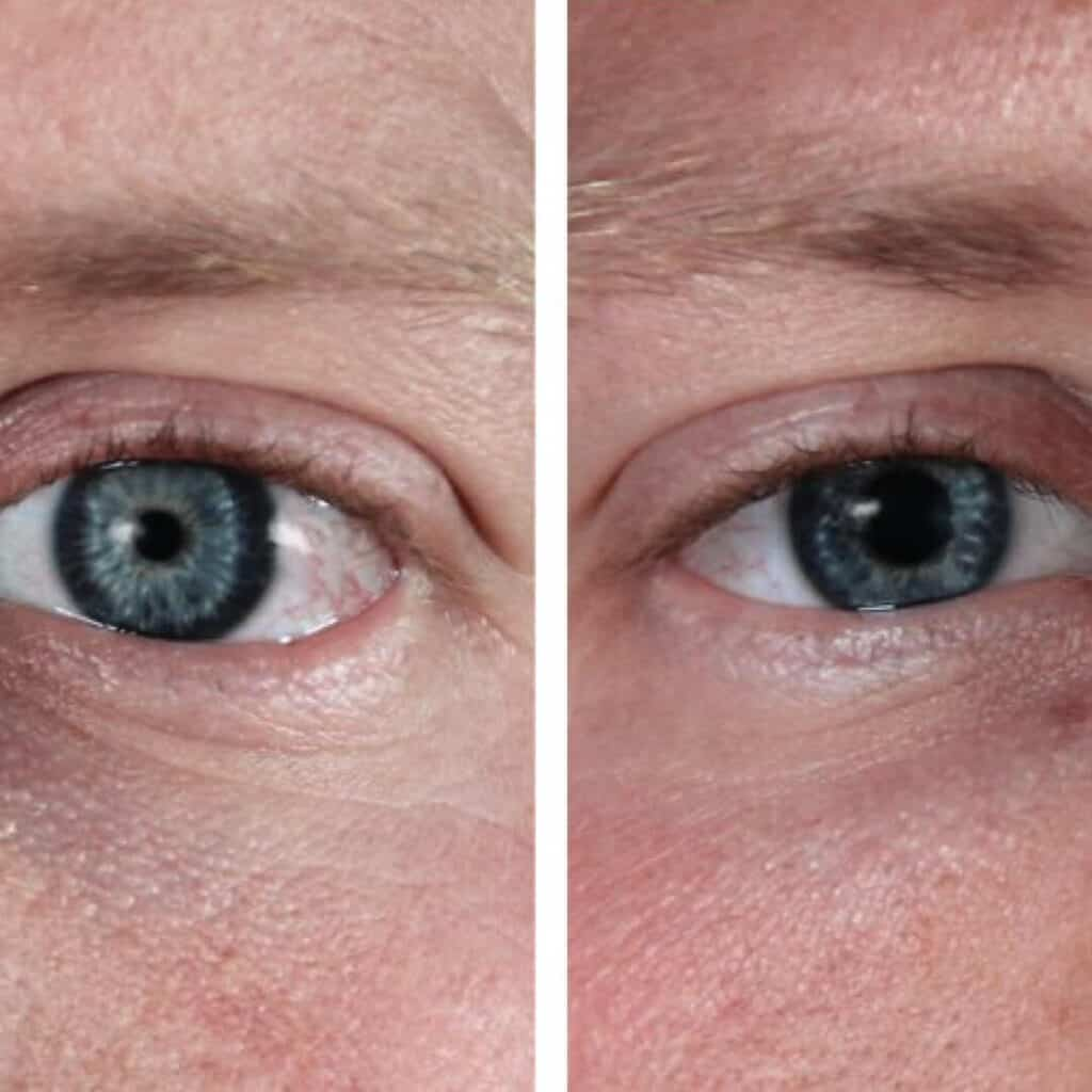 constricted pinpoint pupils from opioid use compared to normal sized pupils