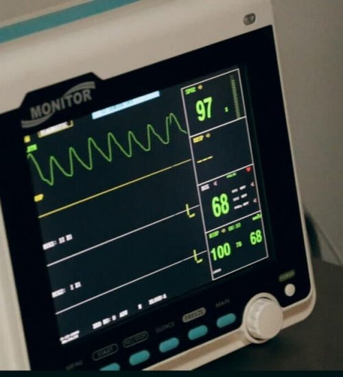 cardiac monitor showing effects of alcoholism on heart